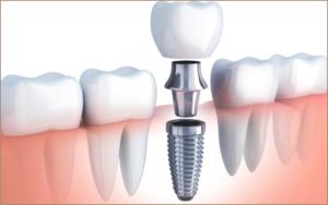 Paradise Hills Dentistry - Dr. Bryan Tran Dental Implant