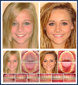 Teen Female Before and After