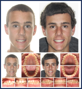 Teen Male Before and After
